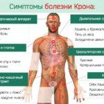 Эксперт отвечает на вопросы о болезни Крона
