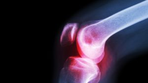 Болезнь Крона и боль в суставах: какая связь?