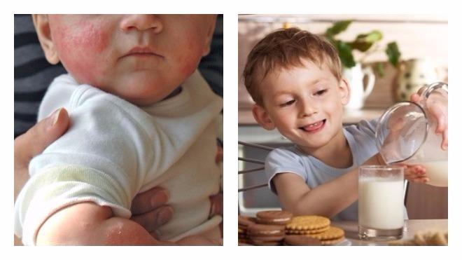 Что может сказать стул вашего ребенка об Аллергии на молоко